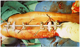 Trauma & Fracture Surgery